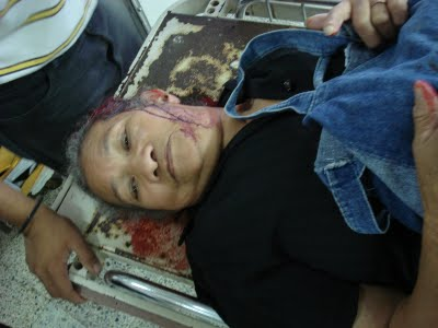 弾圧を受け、病院に運び込まれた負傷者